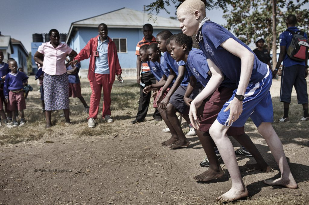 Mwanza, Tanzania, July 10, 2014 - Running race in sport day in Lake View School, Mwanza, Tanzania. In this school Under The Same Sun is full guarantee for 52 children with albinism, this allow them to study in a normal mixed school instead of special centers. In Tanzania albinos are considered disabled, but they just might have sight problems.