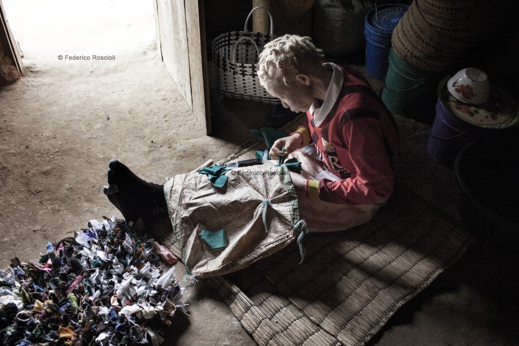 Ilula, Tanzania, July 21, 2014 - Alufema sawing a carpet. She is one of the persons with albinism of the Kilolo District censed by Tulime Association. There have never been killings in this area, so the first enemy of albinos is the sun. The census was fundamental in order to be able to help the albinos of the area with sunscreen cream and medical check-up. The national census does not provide correct and actual data about albinism.