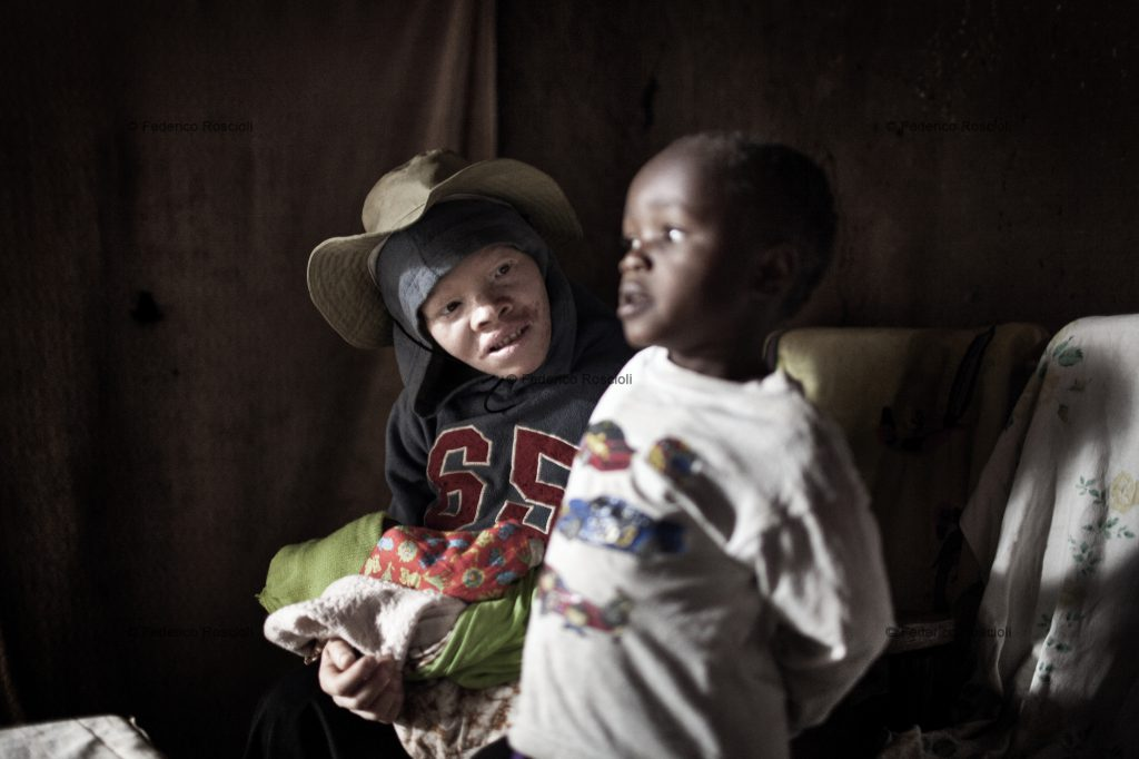 Ilula, Tanzania, July 21, 2014 - Angela with one of her four children, none of them with albinism. She is one of the persons with albinism of the Kilolo District censed by Tulime Association. There have never been killings in this area, so the first enemy of albinos is the sun. The census was fundamental in order to be able to help the albinos of the area with sunscreen cream and medical check-up. The national census does not provide correct and actual data about albinism.
