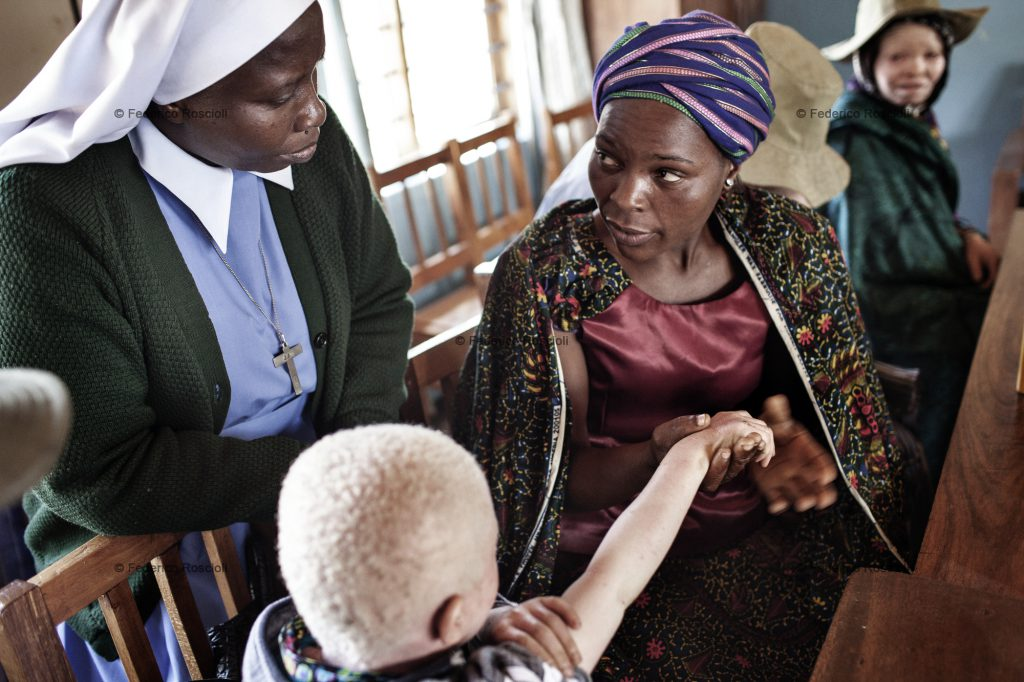 Ilula, Tanzania, July 23, 2014 - Sista Laurentina Bukombe doing a skin check-up during the trimestral meeting. She is a nun graduated in dermatology who is collaborating with Kilimanjaro Christian Medical Centre and Tulime Association, providing albinos with sunscreen lotion, check-up and proper treatment if needed. In this area there had never been killings, so the first enemy of albinos is the sun.