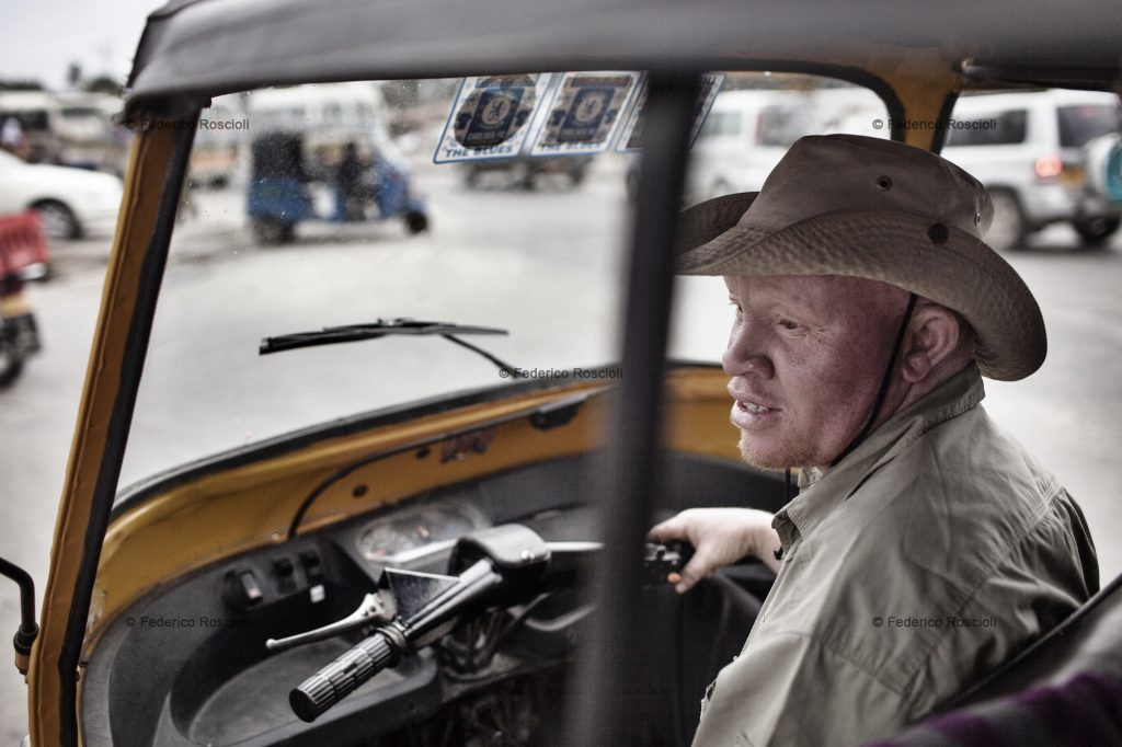 Dar es Salaam, Tanzania, July 29, 2014 - Redman in his room. He is a bajaj driver in Dar es Salaam, Tanzania. Despite albinism, he has been a driver for 9 years, the last 3 on a bajaj. A Bajaj is a three-wheel taxi, perfect to move in Dar traffic. Being covered on the top, it is also a shield from the sun for an albino.
